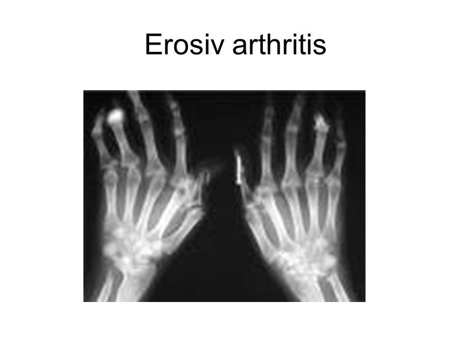 Erosiv arthritis