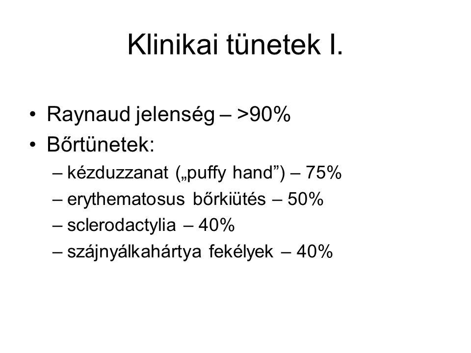 Klinikai tünetek I. Raynaud jelenség – >90% Bőrtünetek: