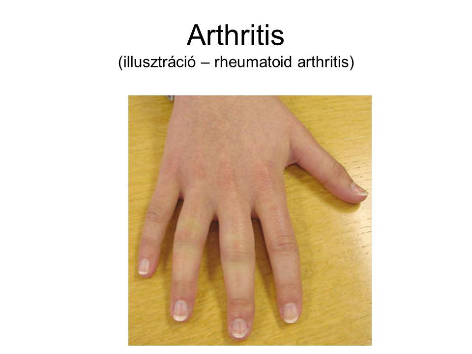 Arthritis (illusztráció – rheumatoid arthritis)
