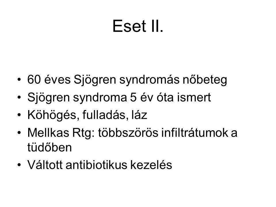 Eset II. 60 éves Sjögren syndromás nőbeteg