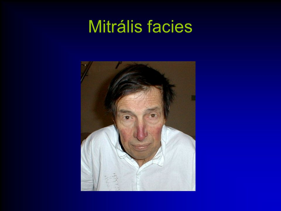 Mitrális facies
