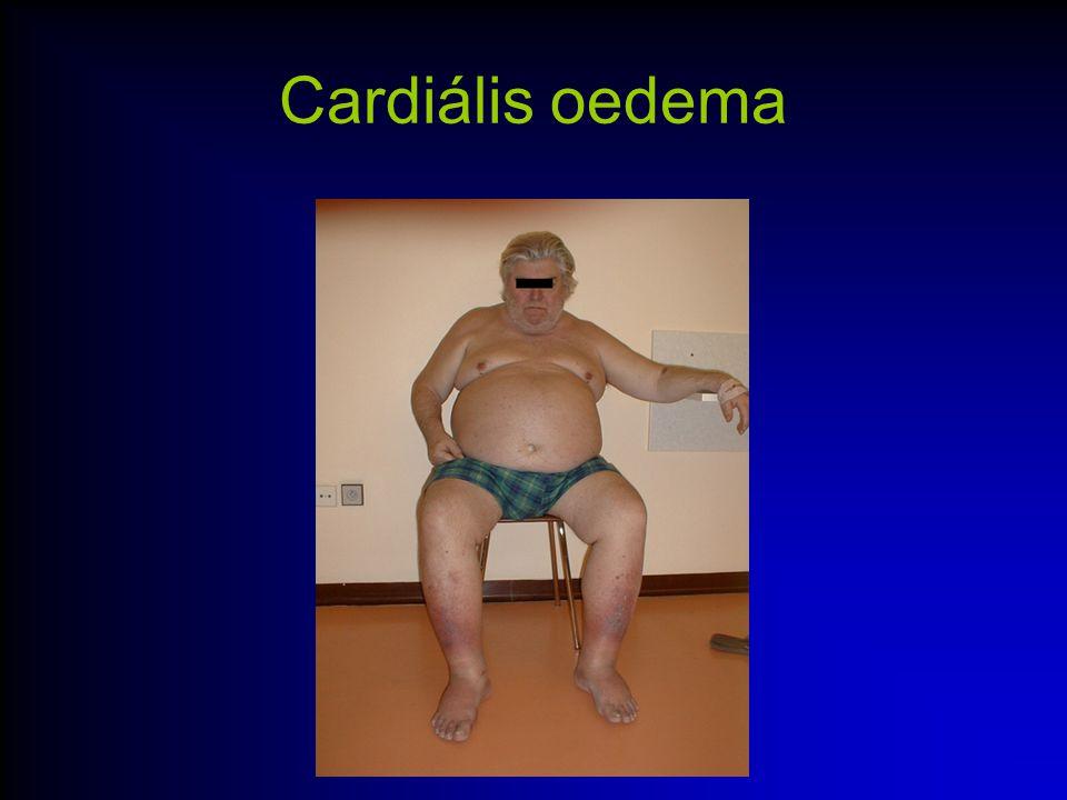 Cardiális oedema