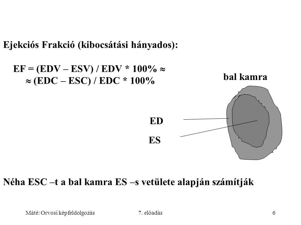 Ejekciós Frakció (kibocsátási hányados):