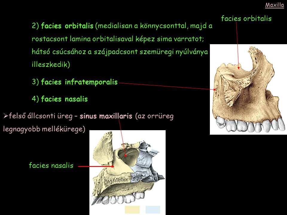 3) facies infratemporalis 4) facies nasalis