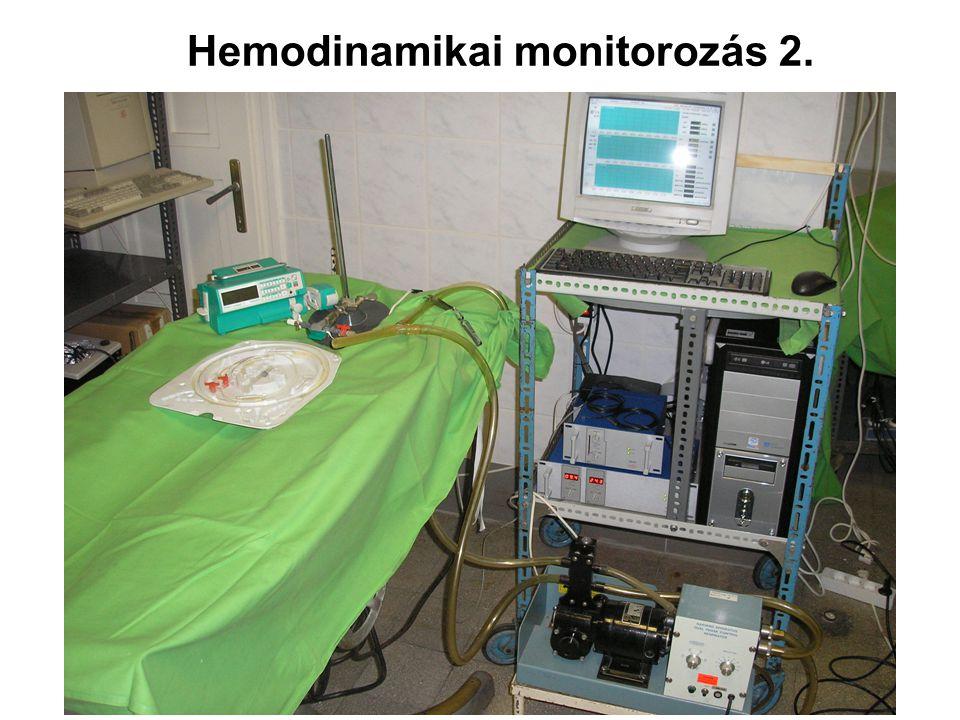 Hemodinamikai monitorozás 2.