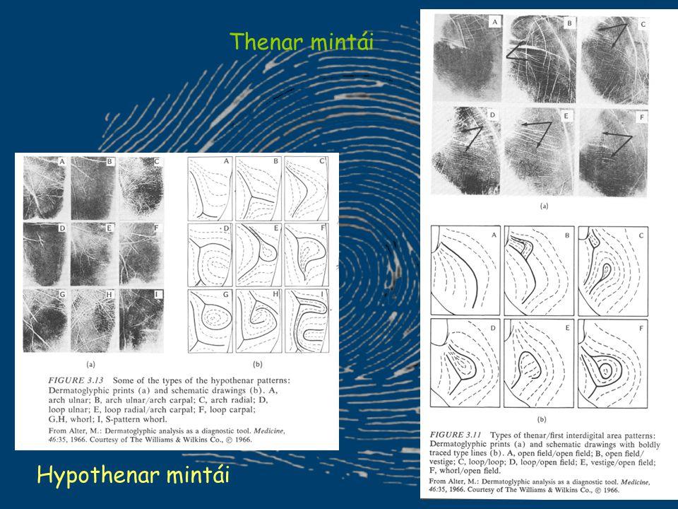 Thenar mintái Hypothenar mintái