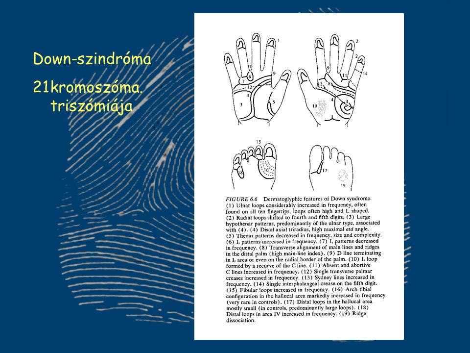 Down-szindróma kromoszóma. triszómiája