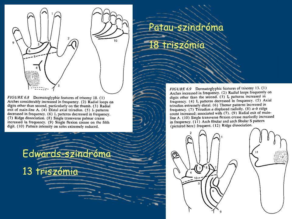 Patau-szindróma 18 triszómia Edwards-szindróma 13 triszómia