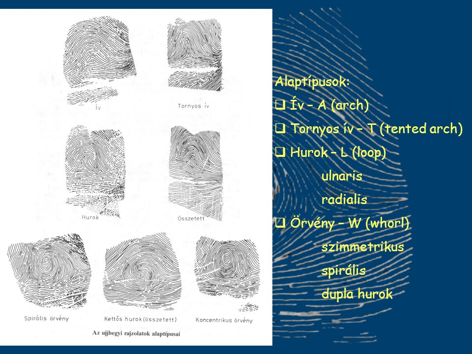 Alaptípusok: Ív – A (arch) Tornyos ív – T (tented arch) Hurok – L (loop) ulnaris. radialis. Örvény – W (whorl)