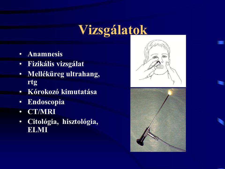 Vizsgálatok Anamnesis Fizikális vizsgálat Melléküreg ultrahang, rtg