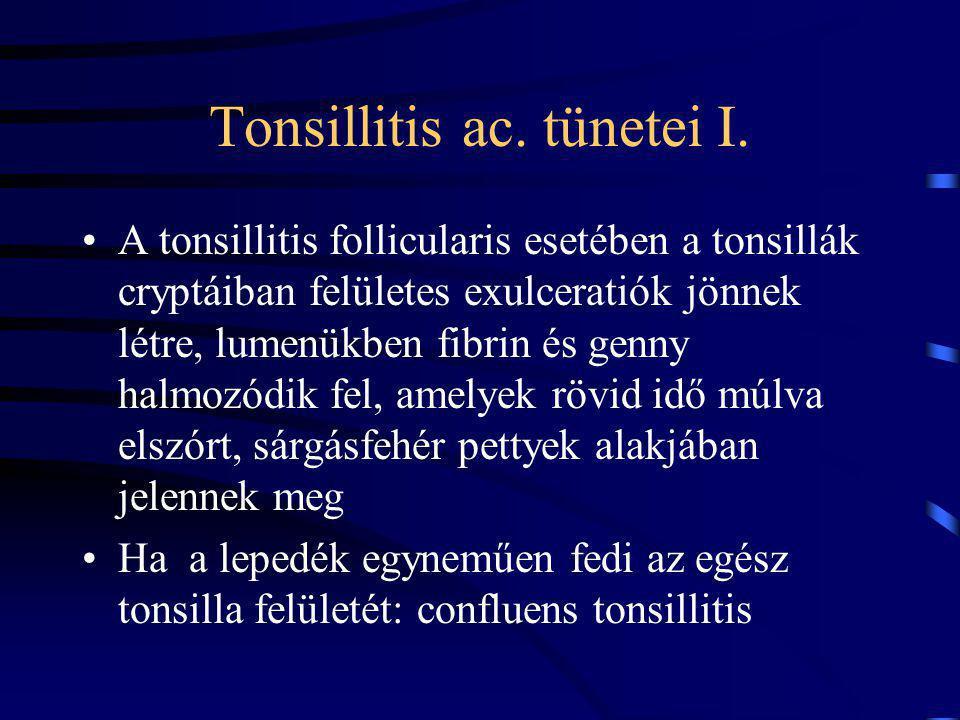 Tonsillitis ac. tünetei I.