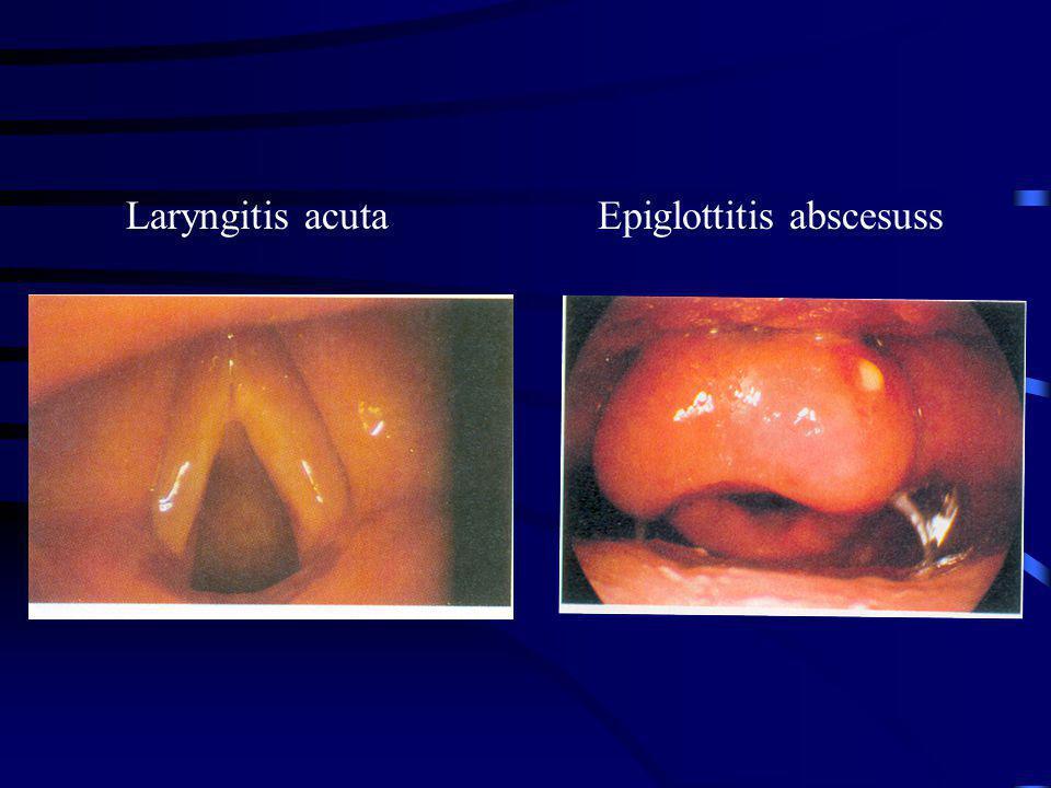 Laryngitis acuta Epiglottitis abscesuss