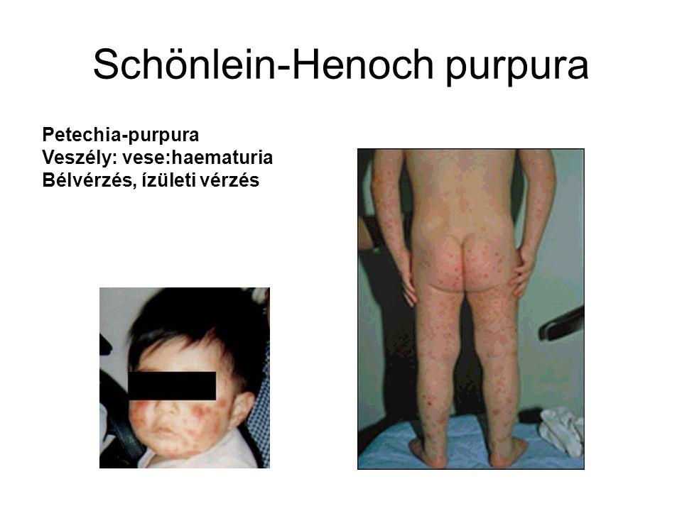 Schönlein-Henoch purpura