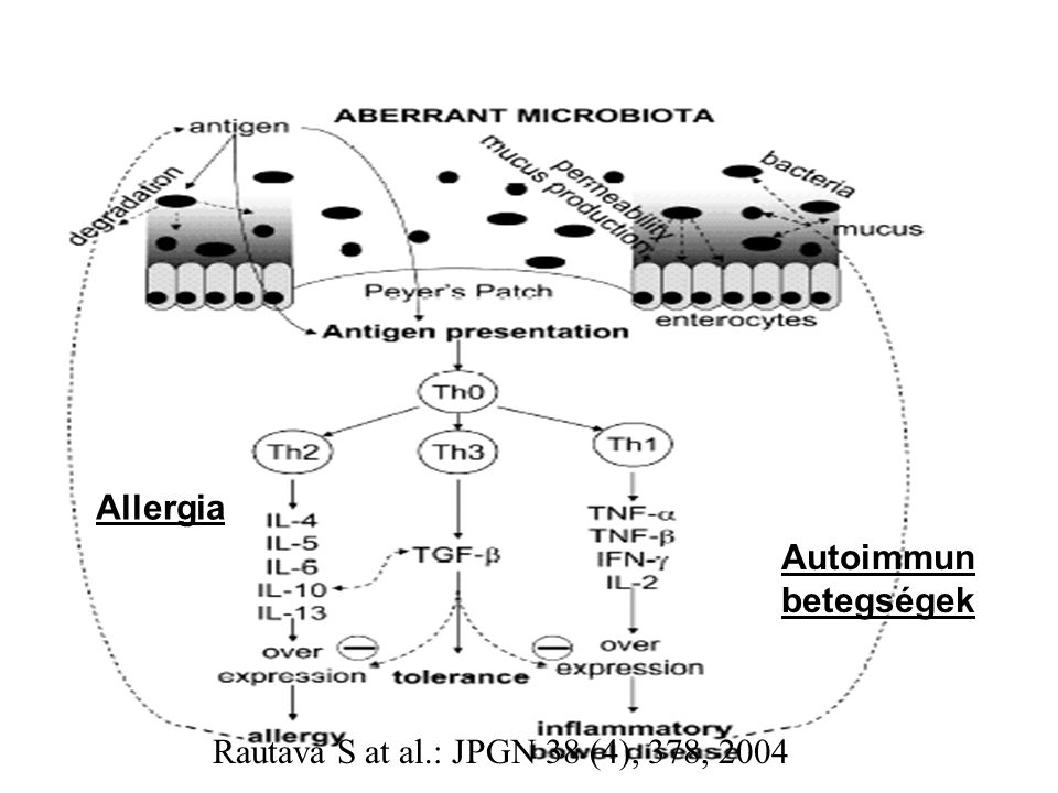 Allergia Autoimmun betegségek Rautava S at al.: JPGN 38 (4), 378, 2004