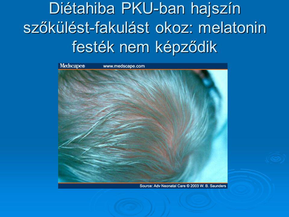 Diétahiba PKU-ban hajszín szőkülést-fakulást okoz: melatonin festék nem képződik