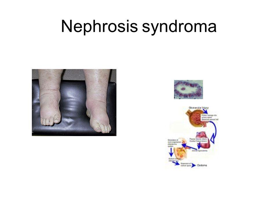 Nephrosis syndroma