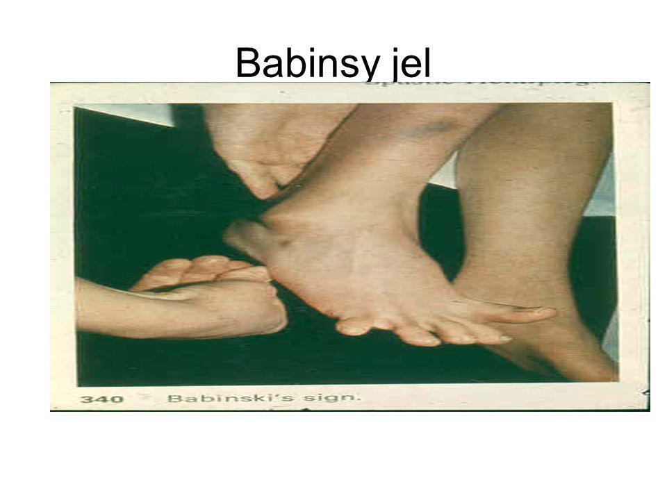 Babinsy jel