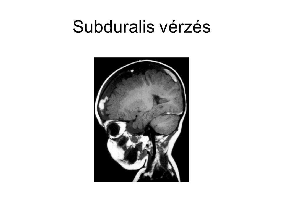 Subduralis vérzés
