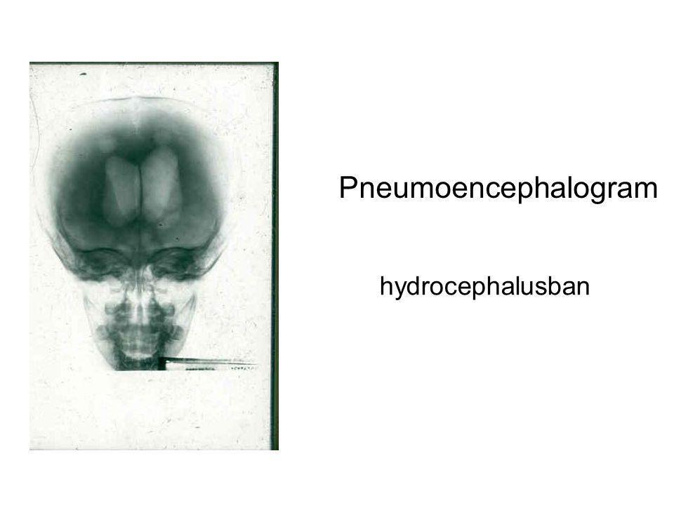 Pneumoencephalogram hydrocephalusban
