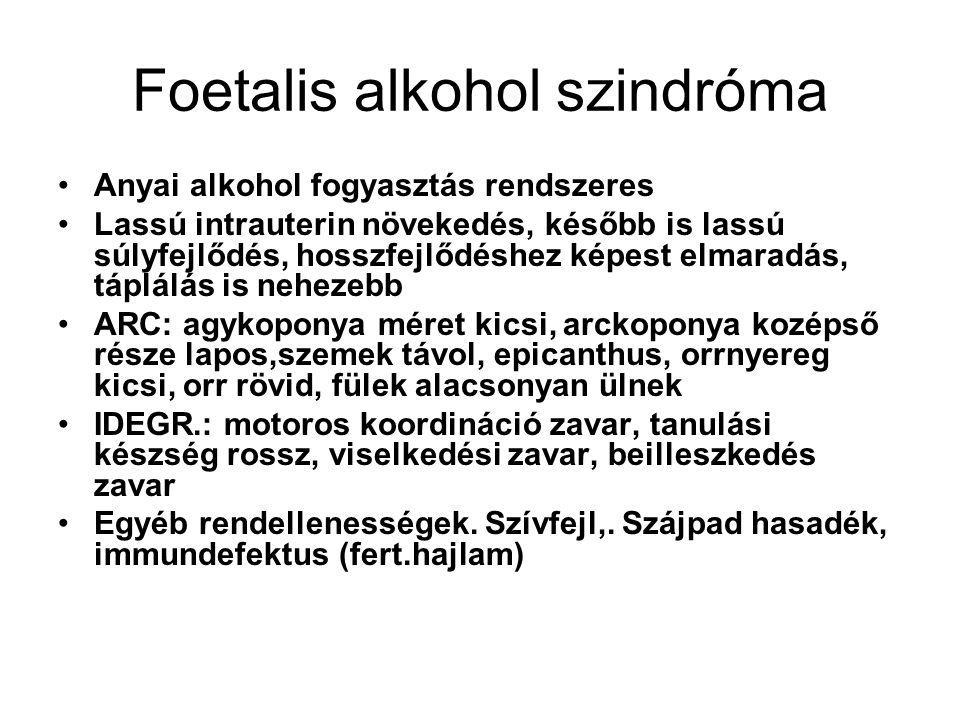 Foetalis alkohol szindróma