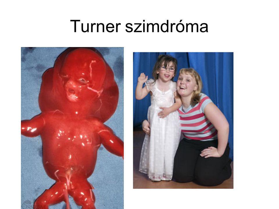 Turner szimdróma