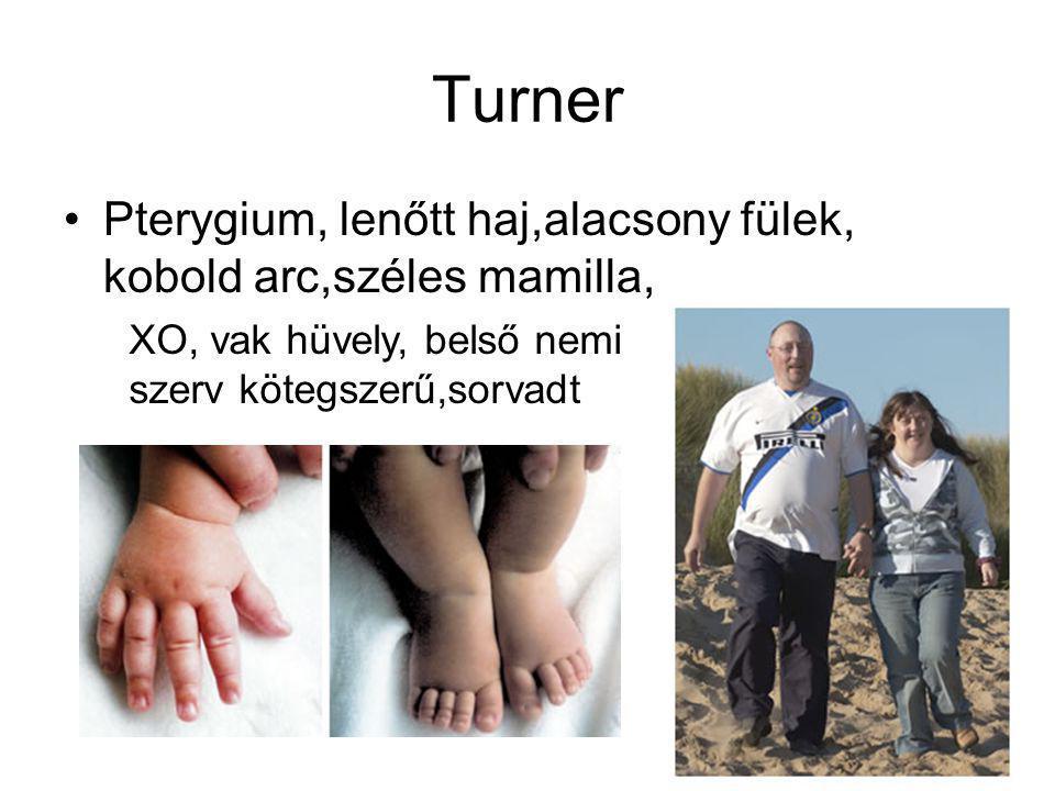 Turner Pterygium, lenőtt haj,alacsony fülek, kobold arc,széles mamilla, XO, vak hüvely, belső nemi.