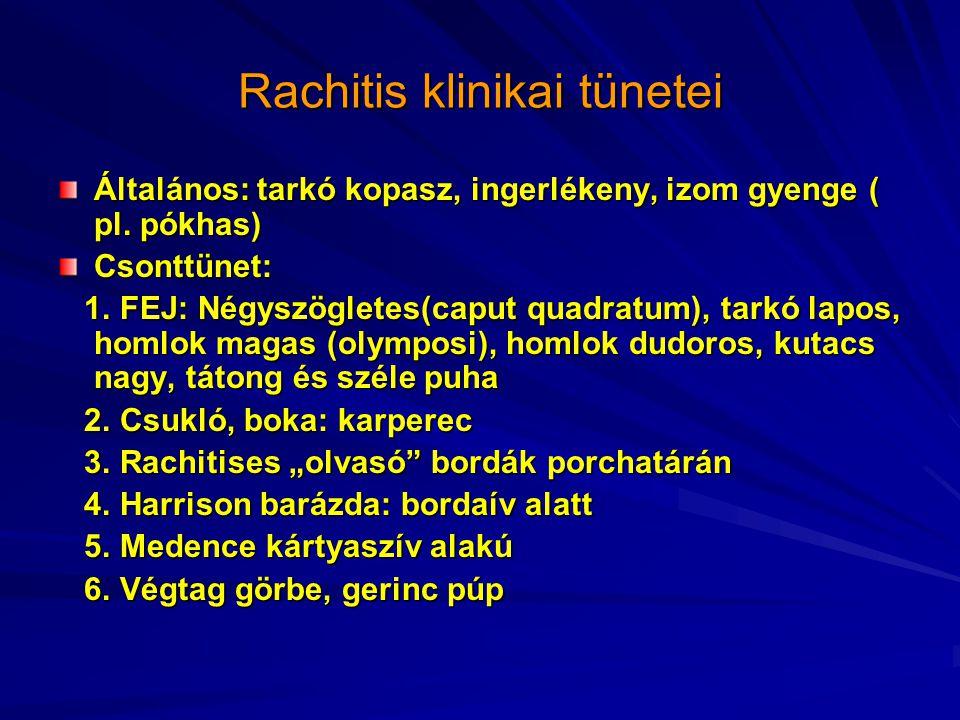 Rachitis klinikai tünetei
