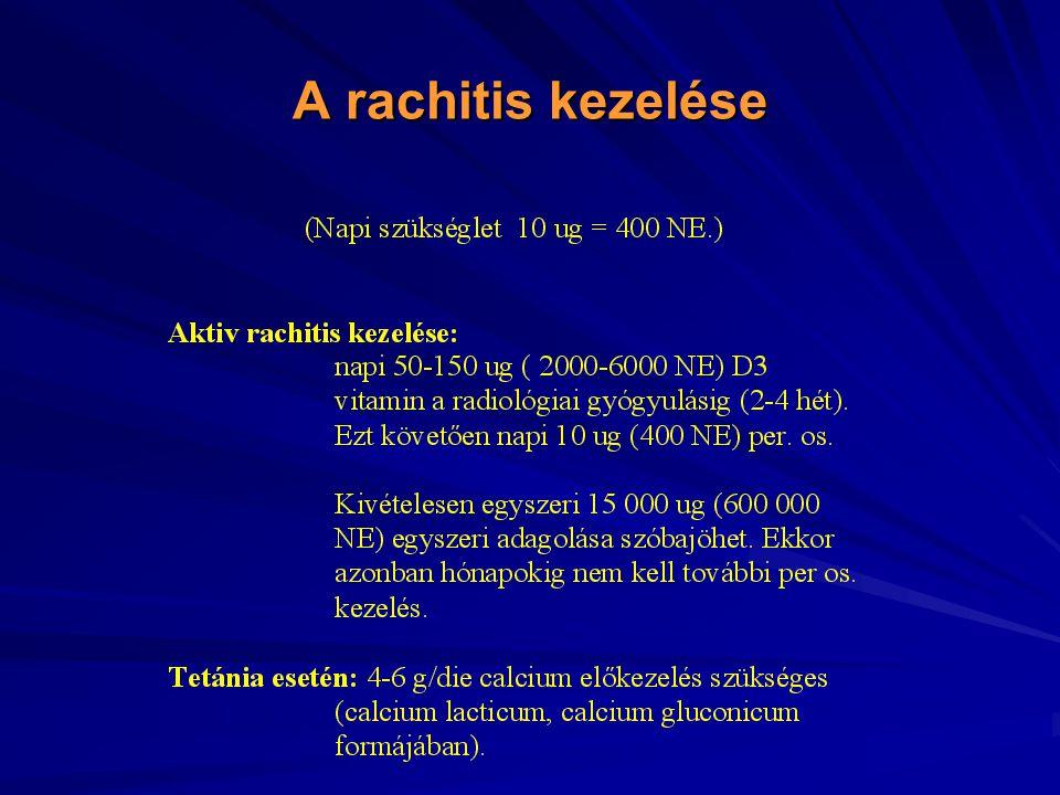 A rachitis kezelése