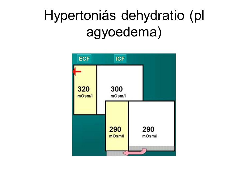 Hypertoniás dehydratio (pl agyoedema)