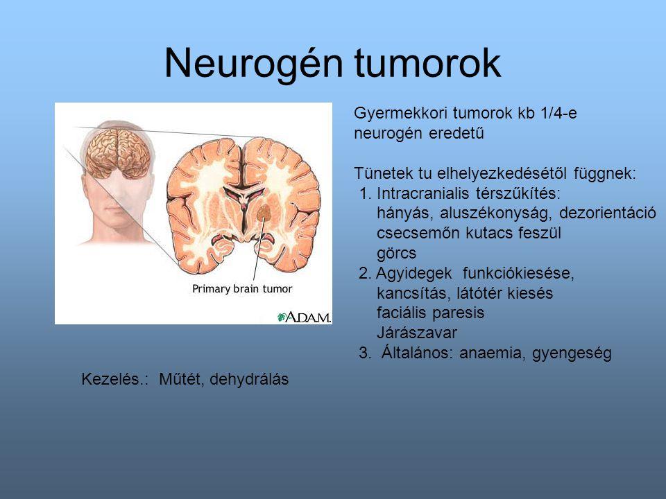Neurogén tumorok Gyermekkori tumorok kb 1/4-e neurogén eredetű