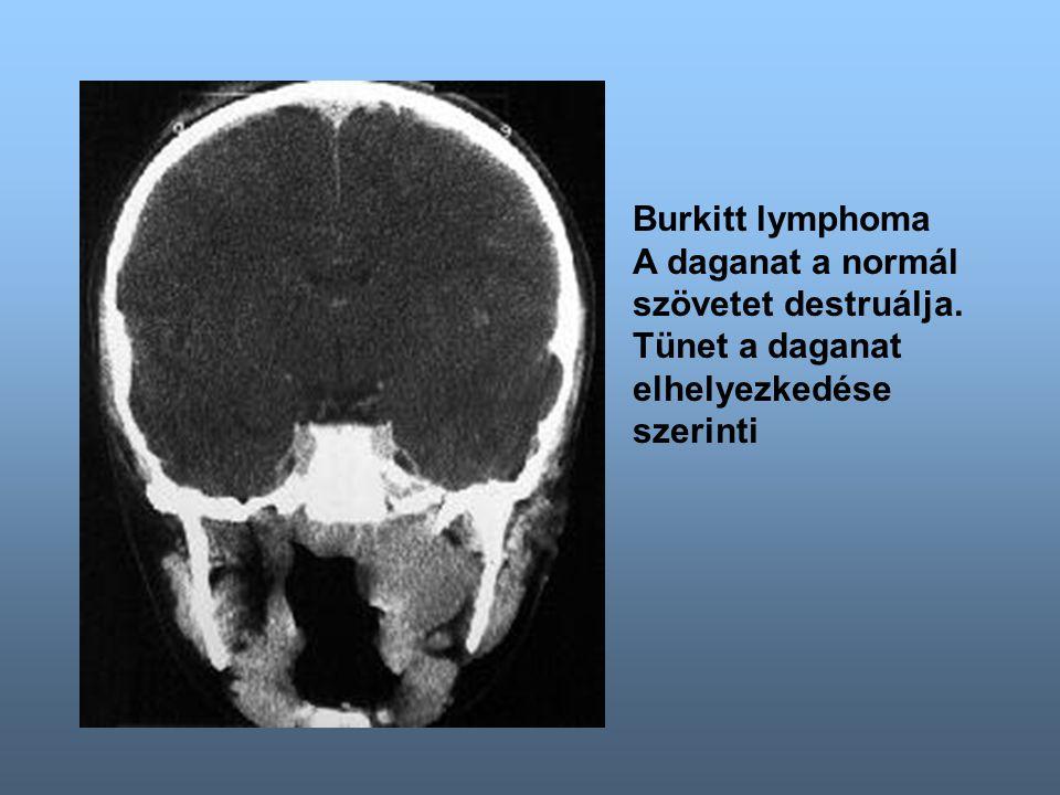 Burkitt lymphoma A daganat a normál szövetet destruálja. Tünet a daganat elhelyezkedése szerinti