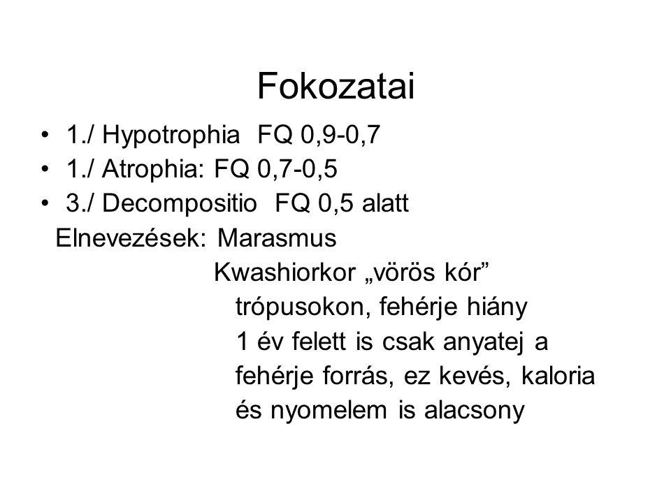 Fokozatai 1./ Hypotrophia FQ 0,9-0,7 1./ Atrophia: FQ 0,7-0,5