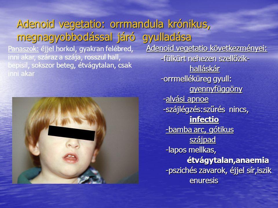 Adenoid vegetatio: orrmandula krónikus, megnagyobbodással járó gyulladása