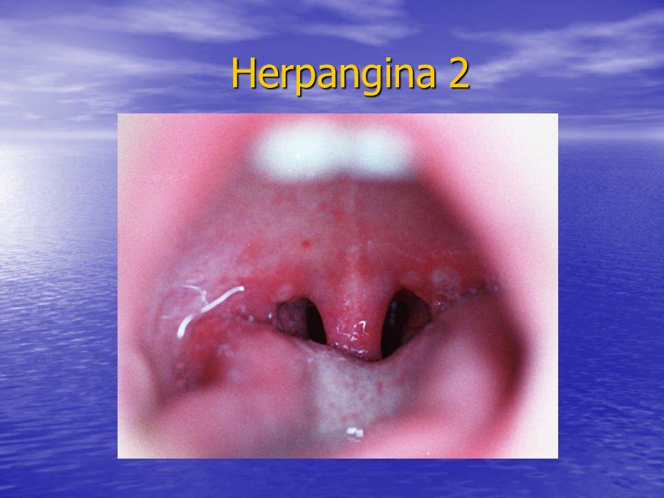 Herpangina 2