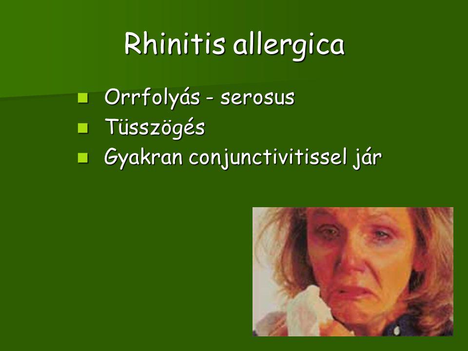 Rhinitis allergica Orrfolyás - serosus Tüsszögés