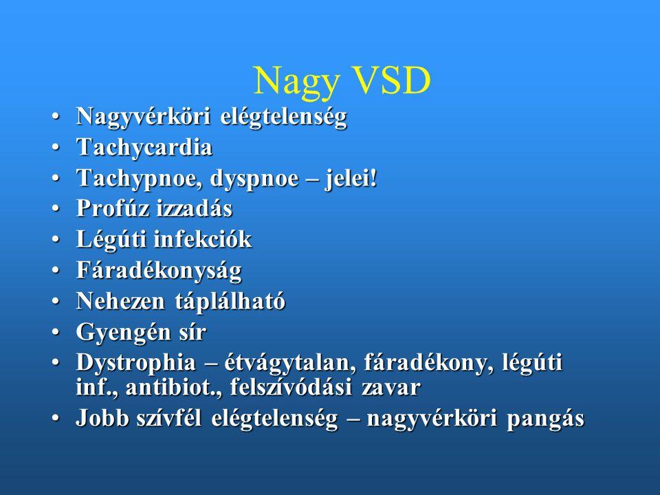 Nagy VSD Nagyvérköri elégtelenség Tachycardia