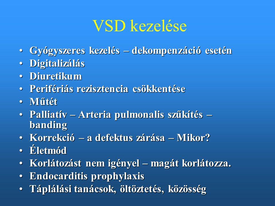 VSD kezelése Gyógyszeres kezelés – dekompenzáció esetén Digitalizálás