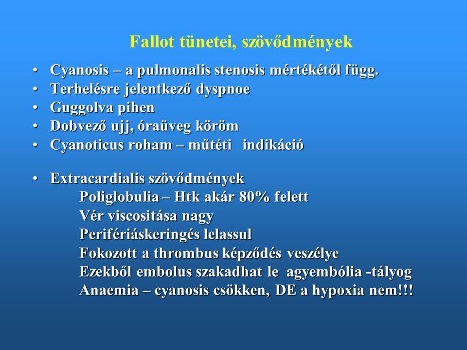 Fallot tünetei, szövődmények