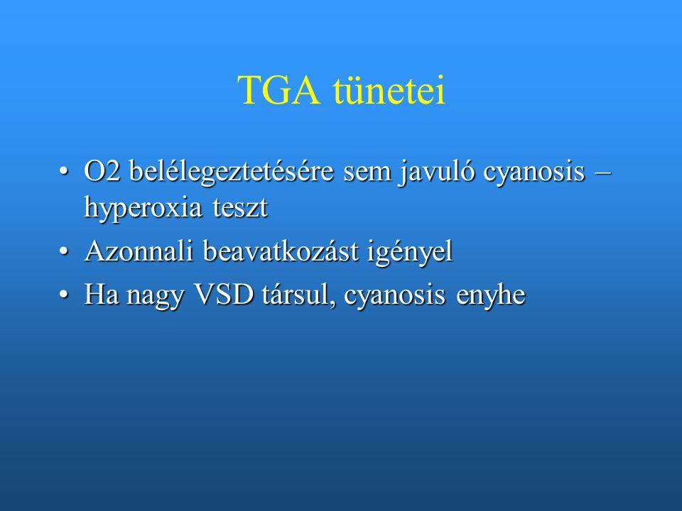 TGA tünetei O2 belélegeztetésére sem javuló cyanosis – hyperoxia teszt