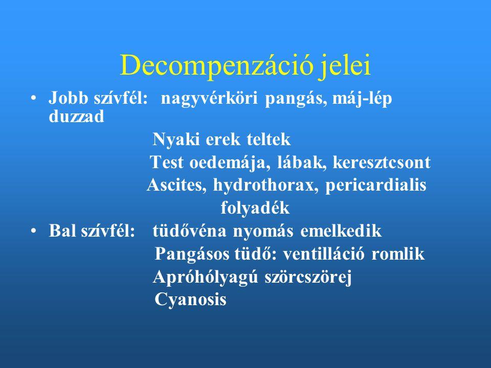 Decompenzáció jelei Jobb szívfél: nagyvérköri pangás, máj-lép duzzad