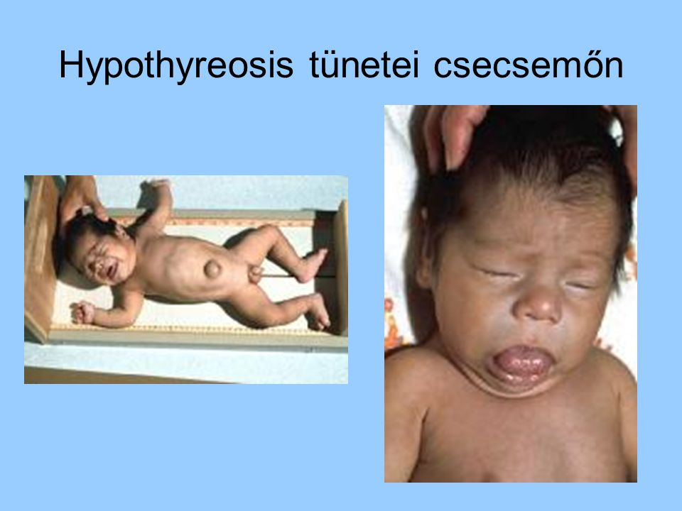 Hypothyreosis tünetei csecsemőn