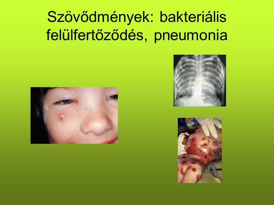 Szövődmények: bakteriális felülfertőződés, pneumonia