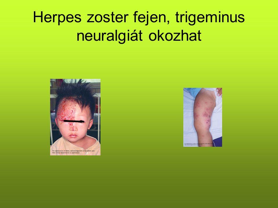 Herpes zoster fejen, trigeminus neuralgiát okozhat