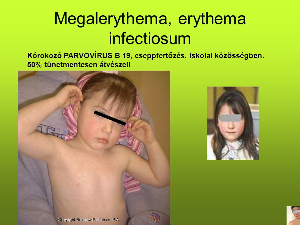 Megalerythema, erythema infectiosum