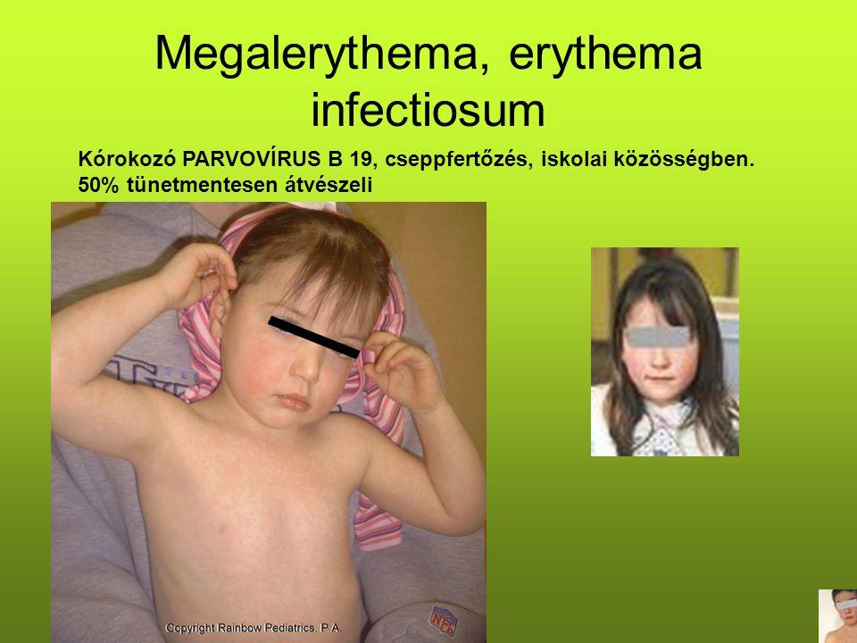 Megalerythema, erythema infectiosum