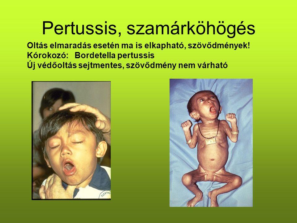 Pertussis, szamárköhögés