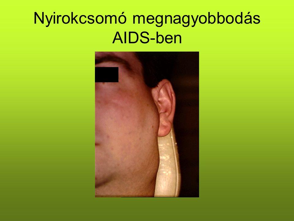 Nyirokcsomó megnagyobbodás AIDS-ben