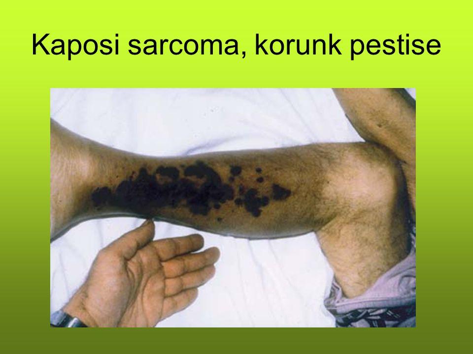 Kaposi sarcoma, korunk pestise