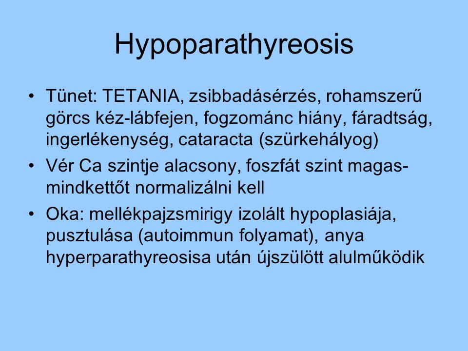 Hypoparathyreosis Tünet: TETANIA, zsibbadásérzés, rohamszerű görcs kéz-lábfejen, fogzománc hiány, fáradtság, ingerlékenység, cataracta (szürkehályog)