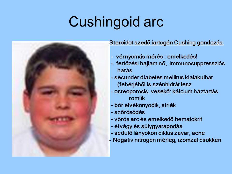 Cushingoid arc Steroidot szedő iartogén Cushing gondozás: